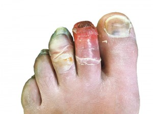 Frostbite on human toes (Photo by Dr. S Falz-Colleque Wikimedia Commons)