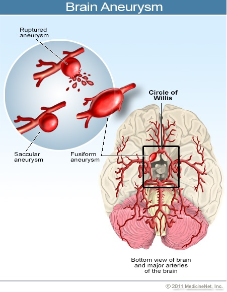 cerebrovascular accident |, Skeleton
