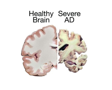 the aging brain and alzheimer s Brain training, exercise and blood pressure control are the best bets for  loss,  dementia and alzheimer's disease, national academies panel says  the loss of  brain power that comes with aging, or the onset of dementia, the.