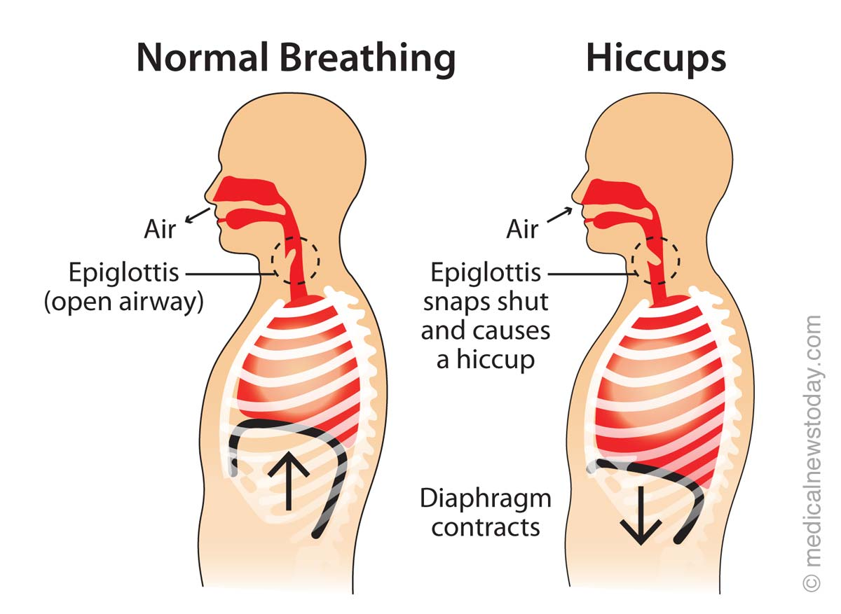 Why Does Eating And Drinking Cause Hiccups