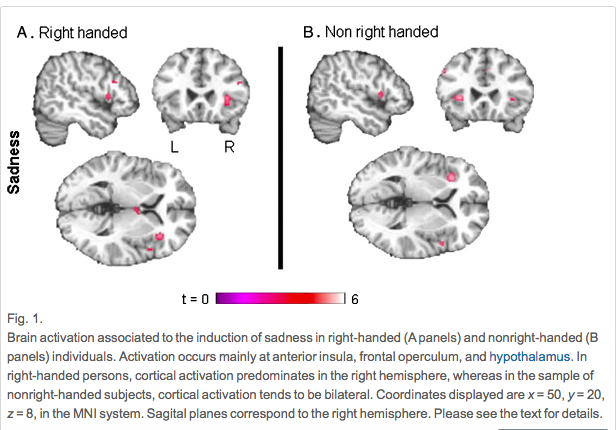 a look at the hemispheric dominance of the brain Each hemisphere of the brain is dominant for other behaviors  so, say a  typical (language in the left hemisphere) split-brain patient is sitting down,  looking.