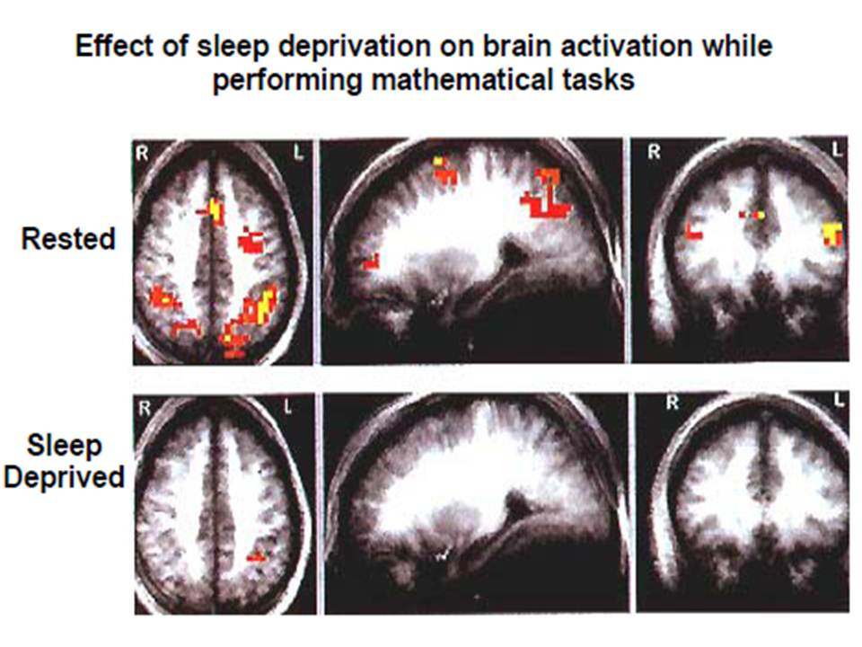 """how lack of sleep affects school Child mind institute links sleep deprivation to moodiness, risky behavior and   the result of how little sleep i'd been getting by on for months,"""" his school offered ."""