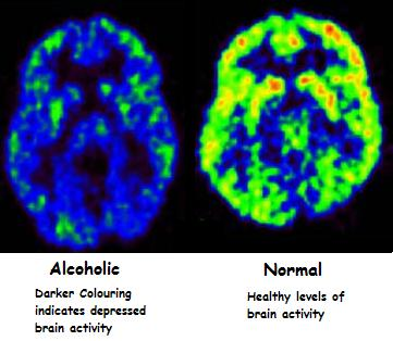 alcohol-drinking-depression-low-brain-activity.jpg
