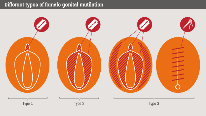 a look at the practice of female genital mutilation 'time has come for us to eradicate this bad practice and protect the rights of girls and women in our country somalia has one of the highest rates of female genital mutilation in the world.