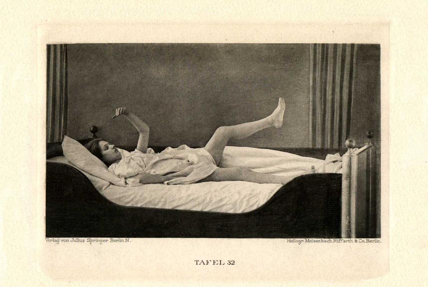 Female patient lying in bed with her left arm and left leg raised