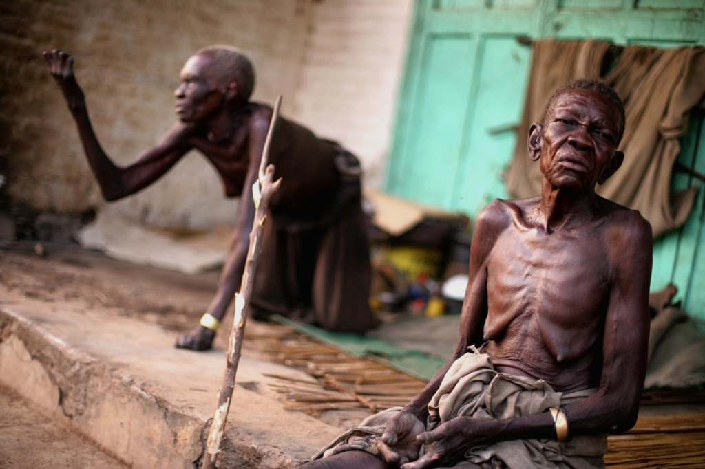 South Sudan - Leprosy and Poverty