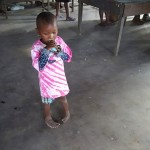 Local girl with clubfoot