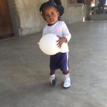 Child with clubfoot playing at a clinic in Mananara