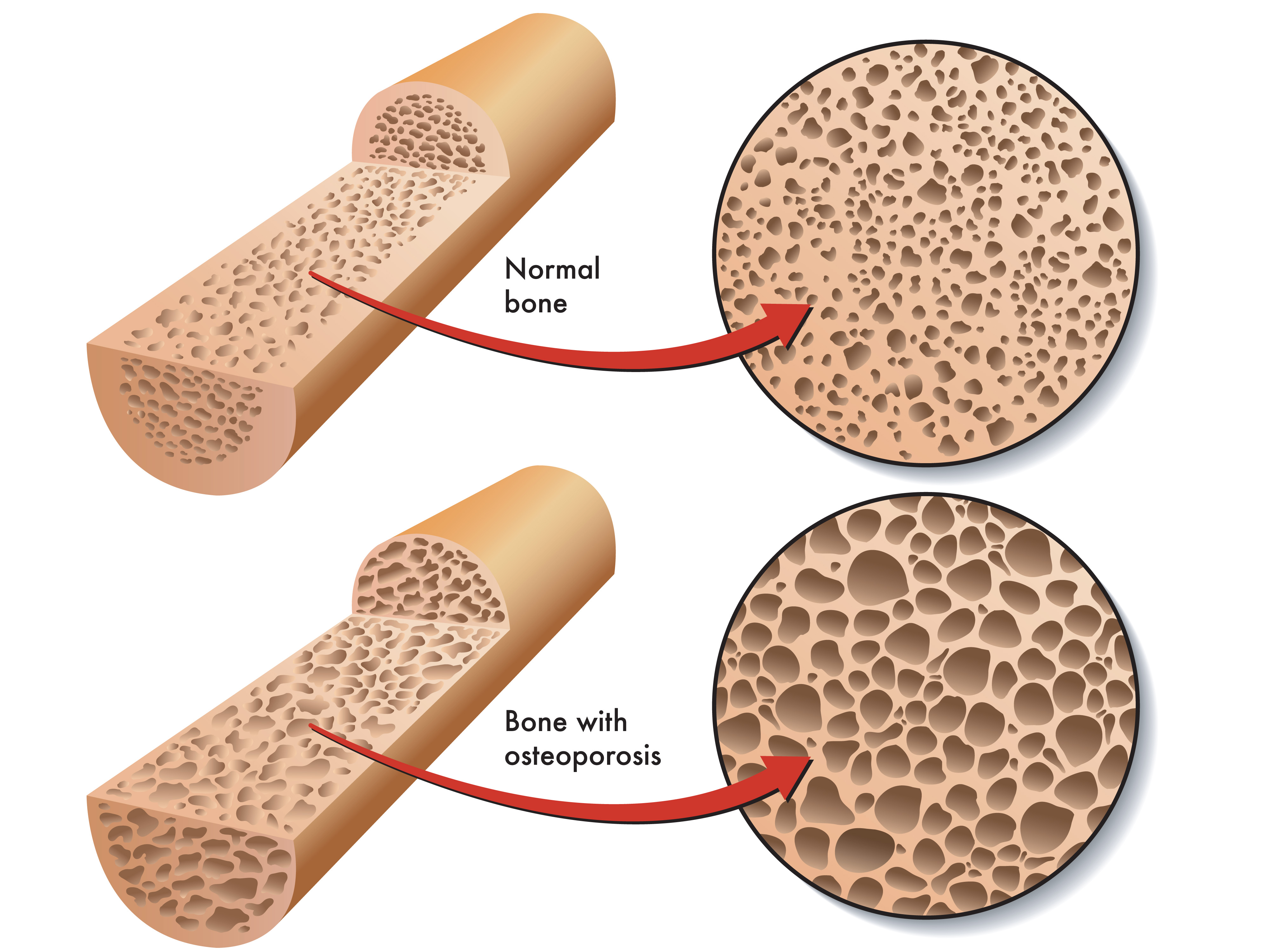 What is osteoporosis 76