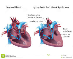 Say goodbye to open heart surgery as you can see in this diagram hypoplastic left heart syndrome hlhs occurs when the left ventricle of the heart has a significantly smaller size than ccuart Choice Image