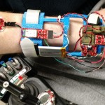 WristSense worn by a user with the various components visible