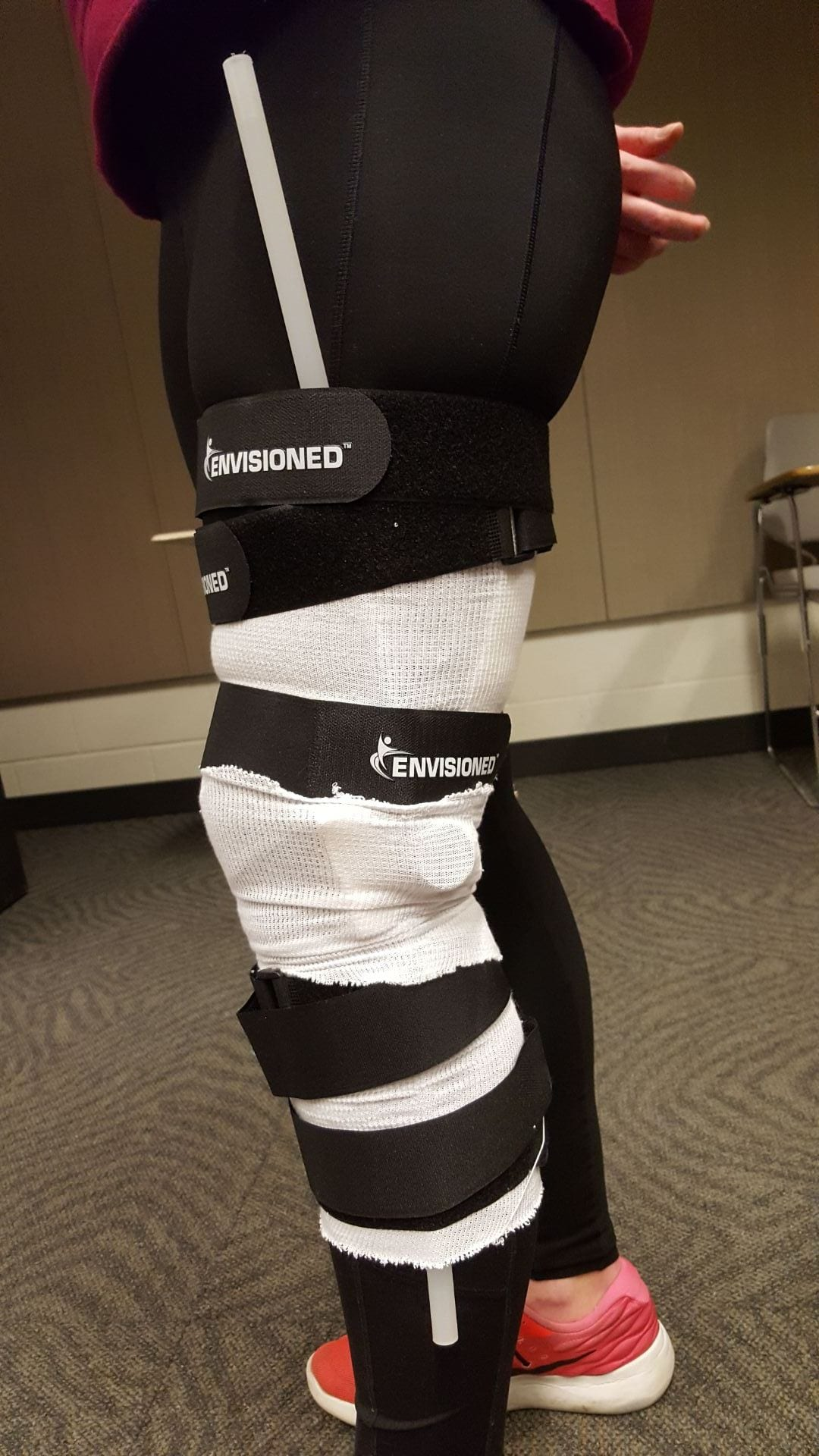 Photo of the leg brace strapped on patient's leg