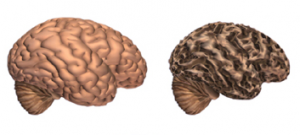 Normal brain versus brain with Alzheimer's. Courtesy of the Alzheimer's Association