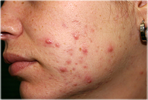dermnet_rf_photo_of_moderate_acne_on_womans_cheek
