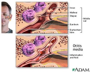 The top picture is a diagram of the inside of an ear. The bottom diagram shows a swollen ear.