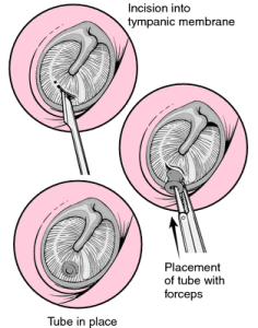 This diagram is another view of the small incision (myringotomy) being made in the eardrum. This diagram also shows the placement of a ventilation tube placed in the eardrum.