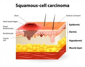 34571547 - squamous-cell carcinoma or squamous cell cancer.