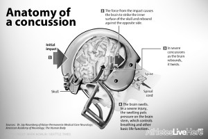 concussions-in-the-nfl