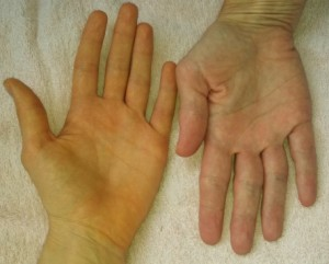 Hand with carotenemia (left) vs. no carotenemia (right). Retrieved from: https://slendergrapefruit.files.wordpress.com/2013/08/img_20130811_193929_7301.jpg