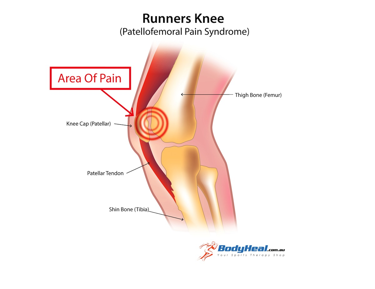 Runners fighting runners knee siowfa16 science in our world although ccuart Choice Image