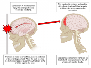 concussion_anatomy-1