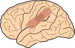brain-damage-clipart-1