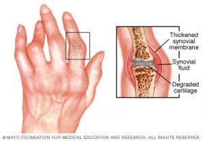 Image taken from http://www.mayoclinic.org/diseases-conditions/rheumatoid-arthritis/home/ovc-20197388