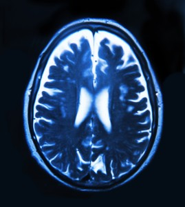 shutterstock-photo-brain-scan