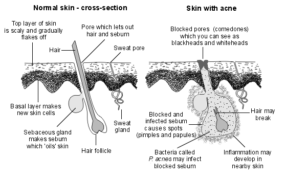 How What You Eat Is Giving You Acne Siowfa16 Science In Our World