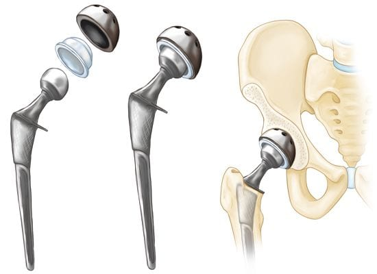 Hip Replacement Surgery | Surgery in Detail